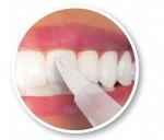Wybielanie zębów dla zdrowia